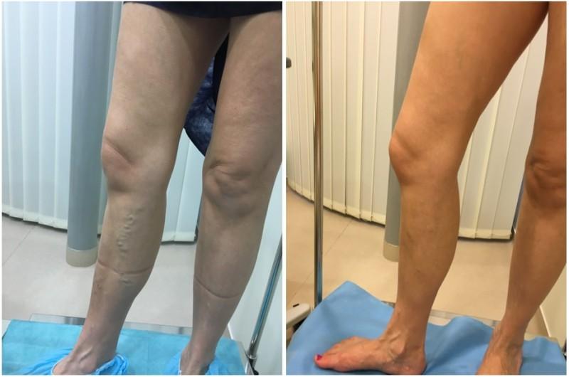 műtét visszér fotók előtt és után