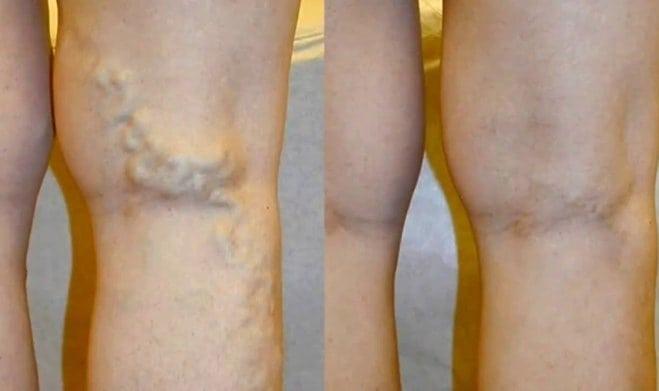 szülés és visszér a lábakon