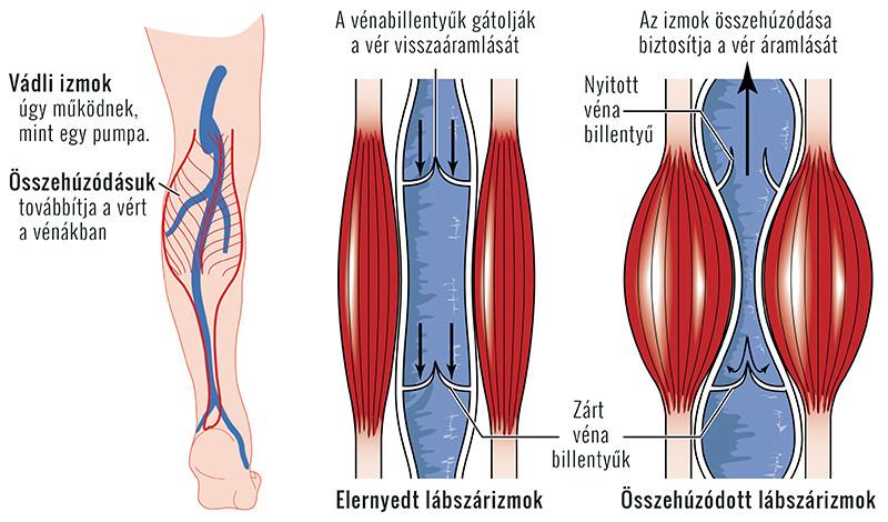a lábak visszértágulatok fájnak, mit vegyenek