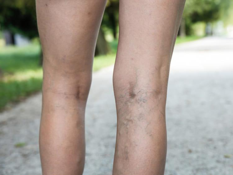 visszér a lábak hatékony kenőcs