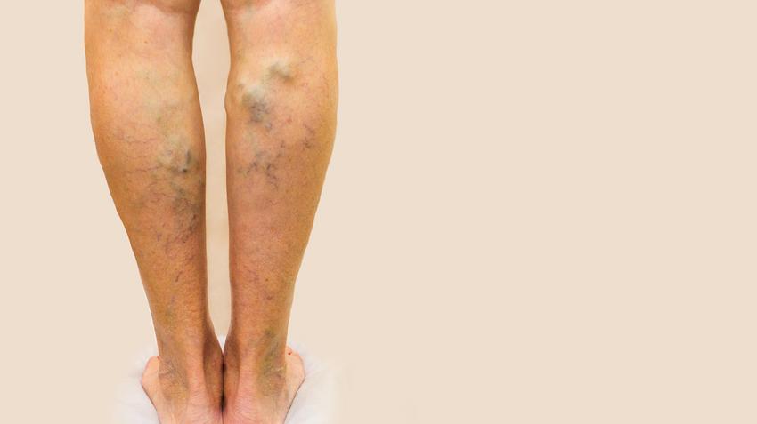 1 láb műtét visszér
