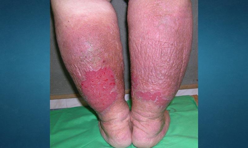 Vénás keringési elégtelenség okozta sebek - Sebkezelébuzavonalak.hu