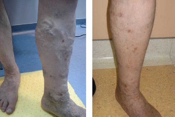 varikózis az egyik lábán egy nőnél