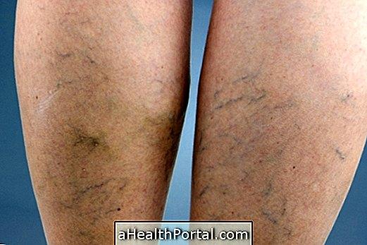 melyik véna a varikózis működése a lábán)