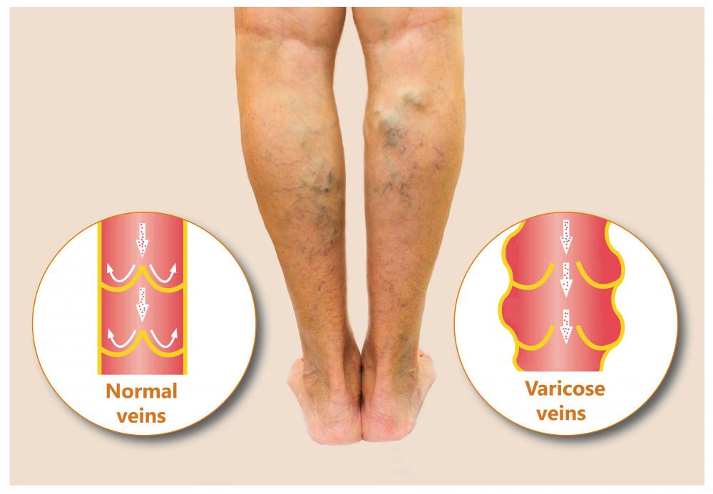 mi a visszér és a trombózis