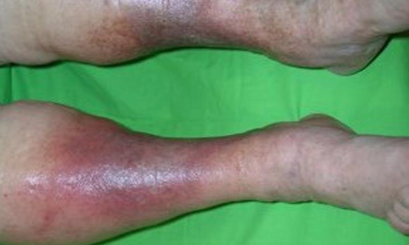 elváltozások a lábakon visszérrel