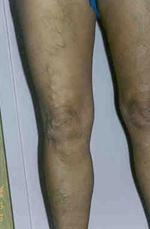 sebek visszér kezelés