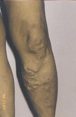égő fájdalom a láb varikózisában