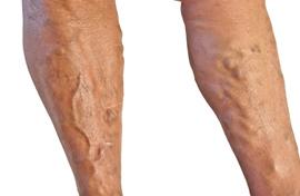 mit jelent a visszér a lábakon
