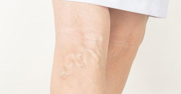 protrombin visszérrel a lábakon lévő visszerek kezelése.
