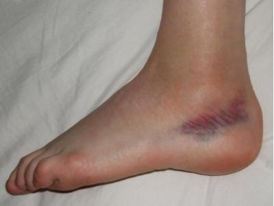 A belső láb varikózisa