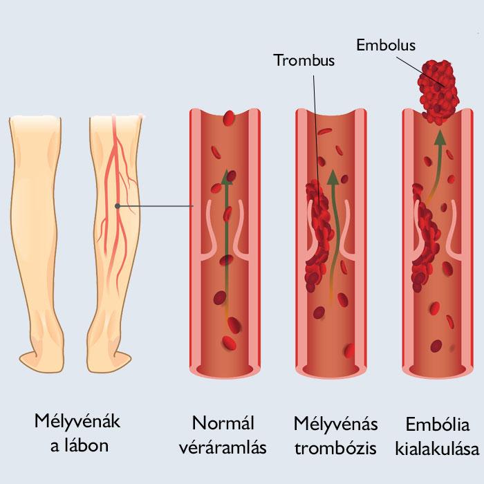 zúzódó visszér a lábakon