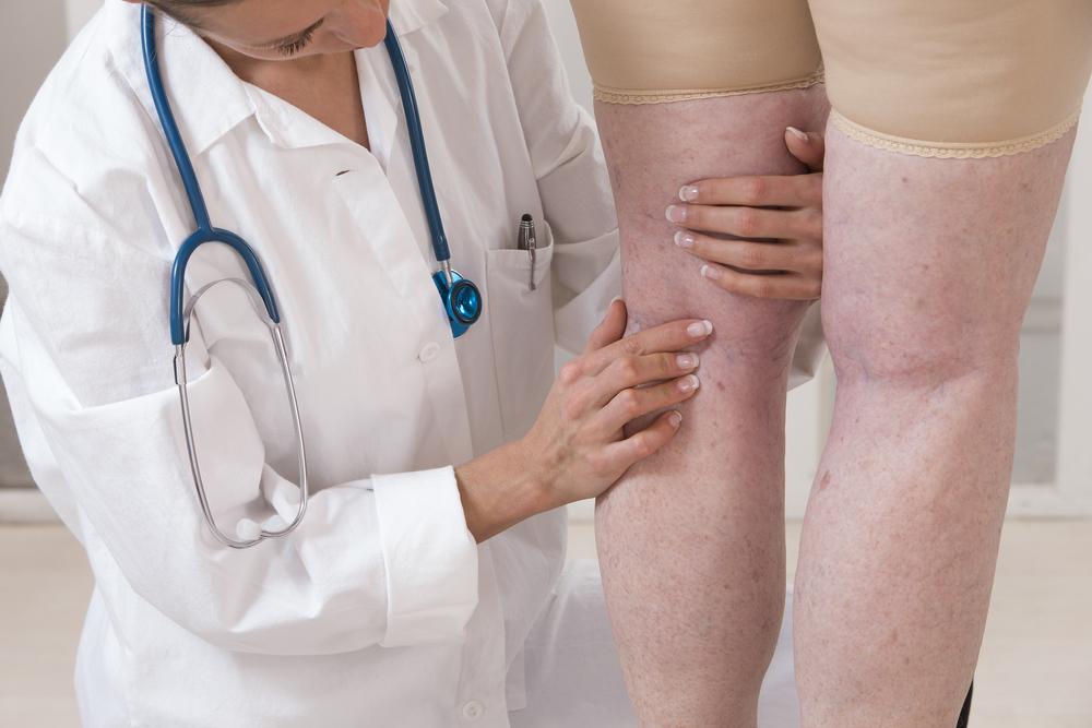 Gyógyítható-e a visszér a lábakon?