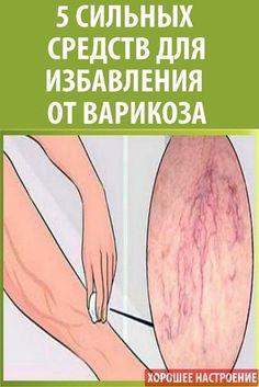 behúzza a csípőt nem visszér