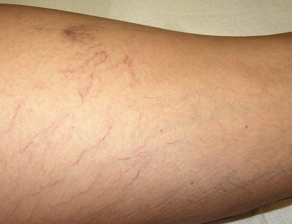 Okok, elsősegélynyújtás és a láb duzzanat kezelése sérülés után - Láb