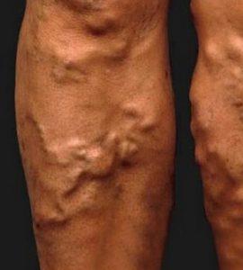 visszér kezelések típusai visszerek kezelése nőknél a lábakon