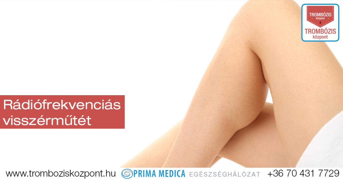 Tratament remedii populare picior varicose