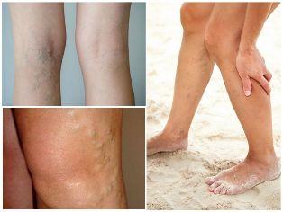 kiütés a lábakon visszér kötszer műtét után visszér