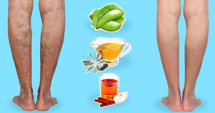 a lábakon lévő visszerek kezelése ecettel)