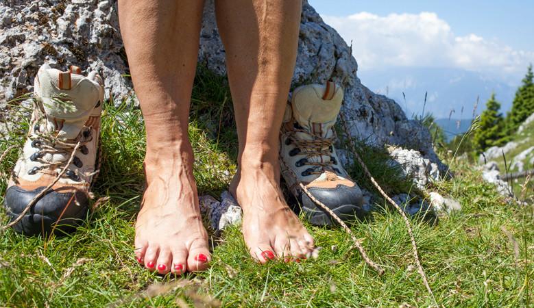 kezdeti visszér a lábakon