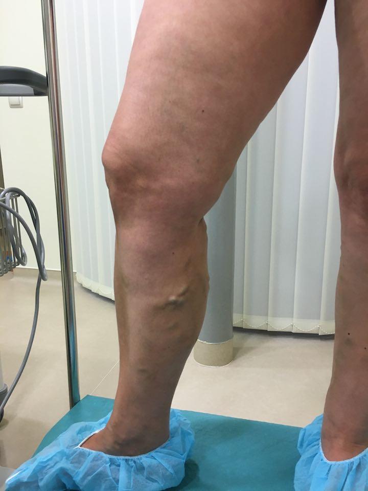 visszérműtét a lábakon ár