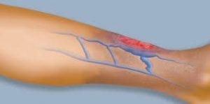 visszér kezelés rádióhullámokkal visszér a lábakon tehetek