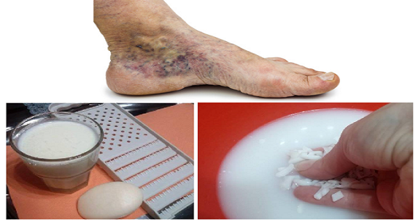 CVS-betegség visszér