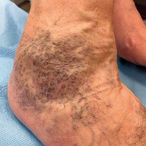 vérzés a lábon visszér vénák eltávolítása visszérrel