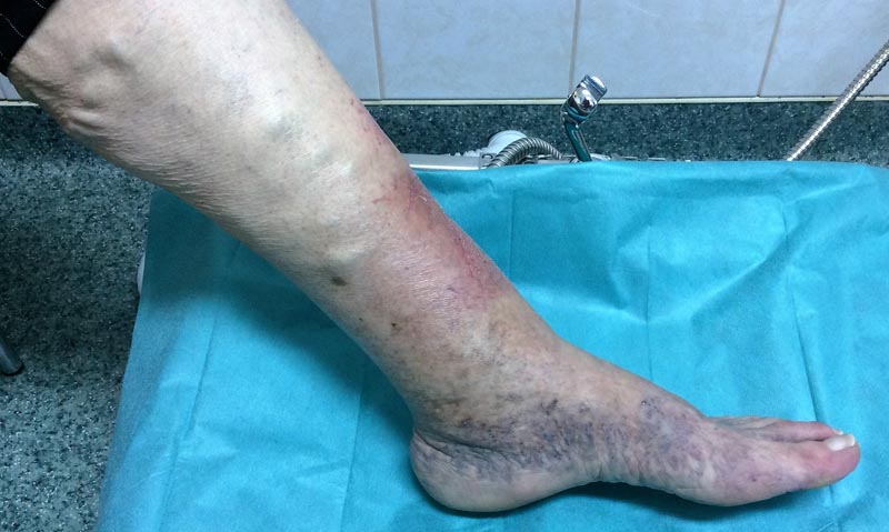 a lábakon lévő visszerek kezelése.
