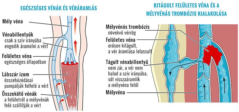 Visszeres lábak
