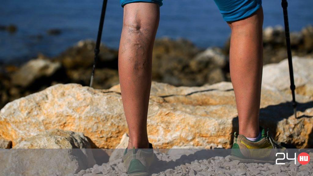 emberi lábak visszér)