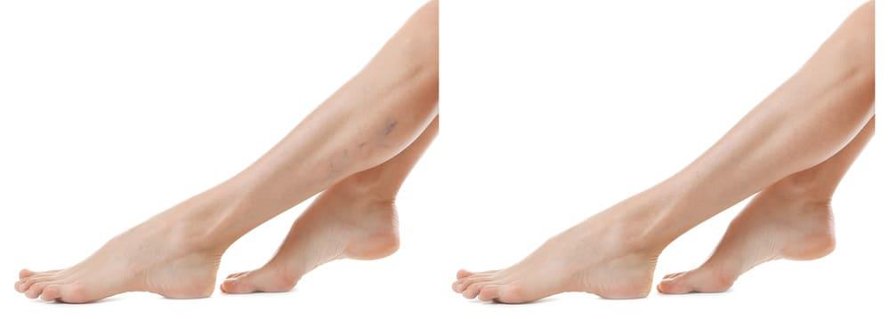 a lábak tisztítása. visszérből