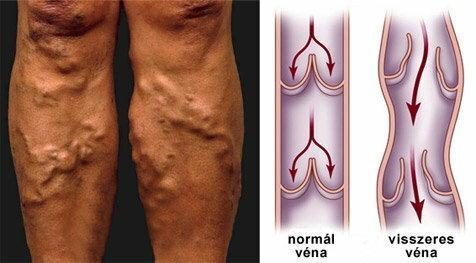 A felületes visszérgyulladás és tünetei