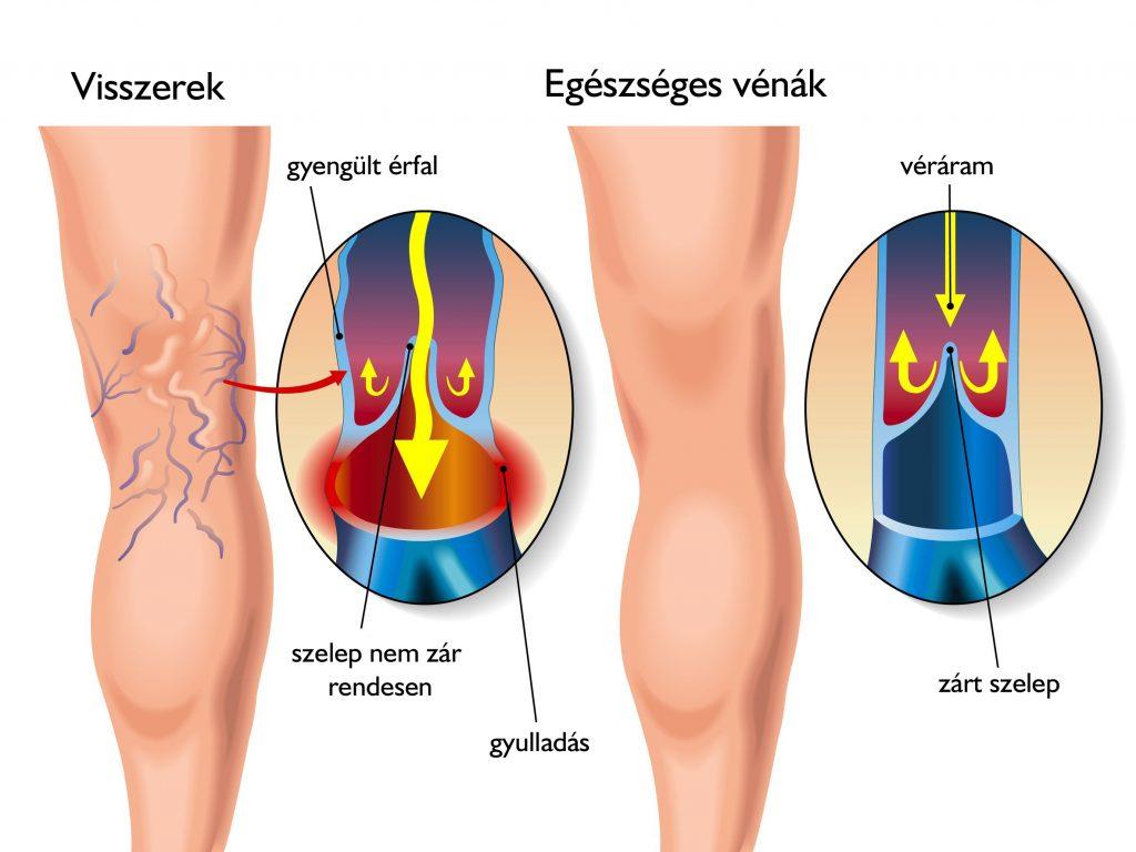 mi a különbség a lymphostasis és a visszér között