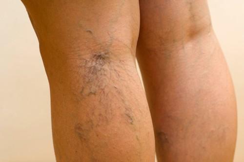 a lábak elkerülik a visszerek visszérét a lábakon női szervek visszér