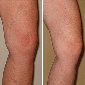 a lábak bőrének változása visszeres