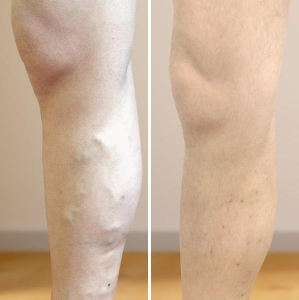 az ödéma és a varikózis megelőzése a lábakon almaecet, hogy letörölje a lábát a visszérről