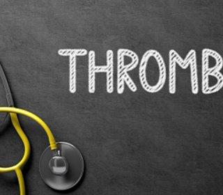 Trombózis- és Hematológiai Központ - trombózis, aranyér, visszér, vérzékenység, véralvadási zavar