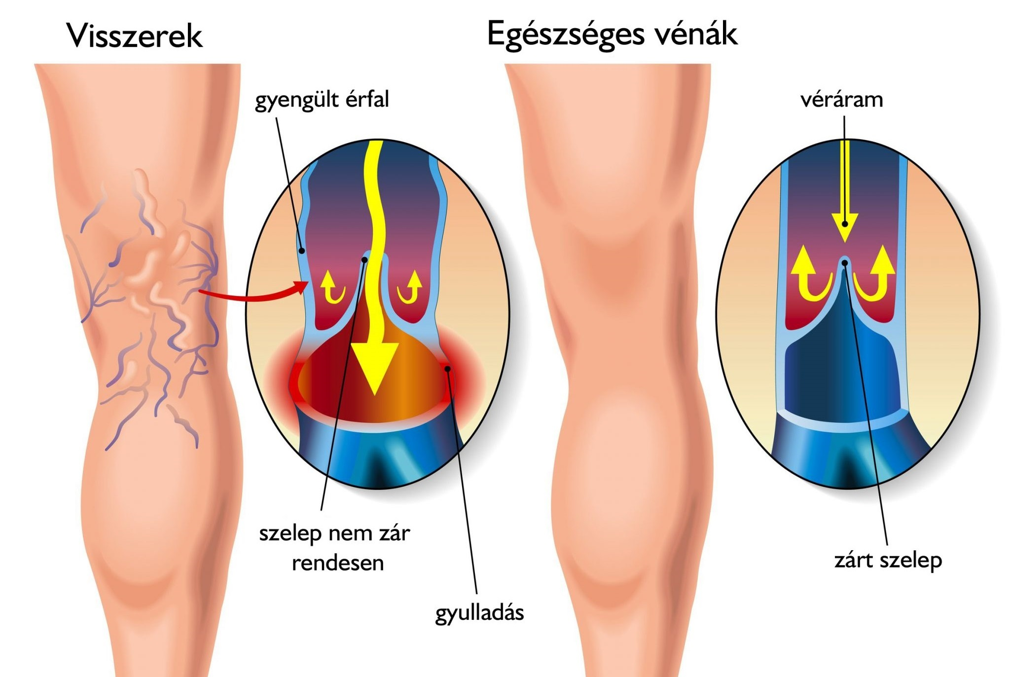 Lézeres visszérműtét (egyoldali) – Kardirex Egynapos Sebészeti Centrum