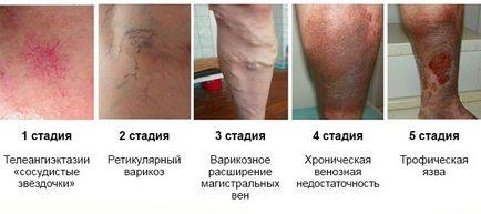 gipsz visszér és vasculitis ellen)