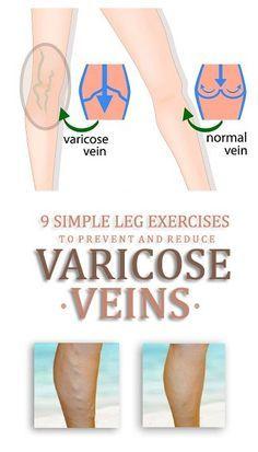 stop varicose no)