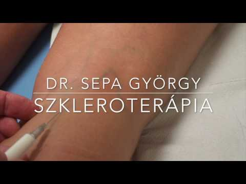 visszér injekció ára)