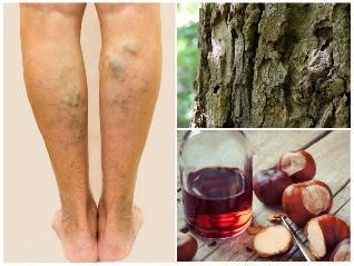 A legjobb módszer a kezelés, visszér a lábon