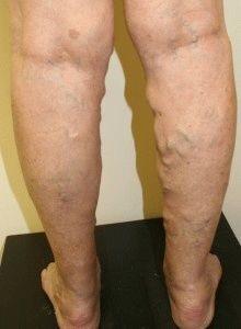 thrombophlebitis és visszér kezelése piócákkal