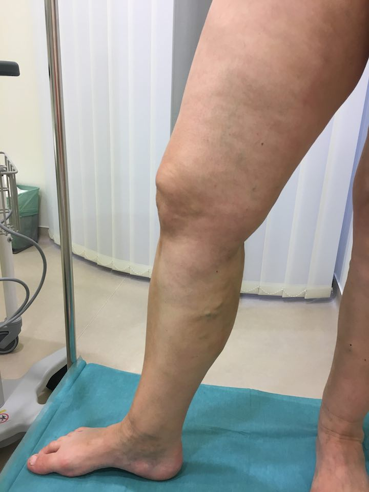 hogy néz ki a láb a visszér eltávolítása után
