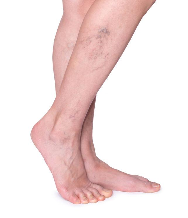 a visszereket zümmögő lábak)