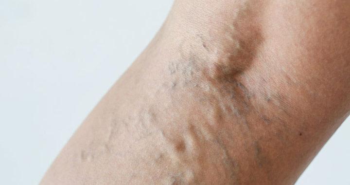 terhesség alatt a lábak visszér