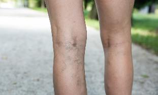 mely orvos foglalkozik a visszerekkel a lábakon