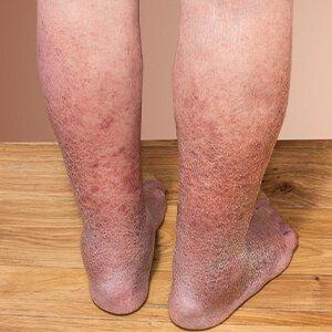 kezelés és a visszerek jelei a lábakon)