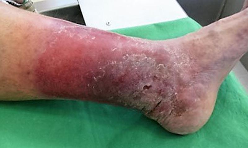 fekete folt a lábon visszér
